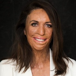 Turia Pitt Biography, Age, Height, Weight, Family, Wiki & More